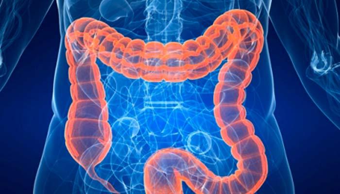 Cáncer de colon: ¿Qué sabes del tumor más frecuente en España?